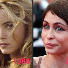 Emmanuelle Béart et la chirurgie esthétique : Son avant/après en photo