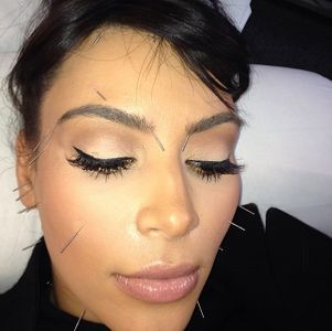 Kim Kardashian chez l'acupuncteur