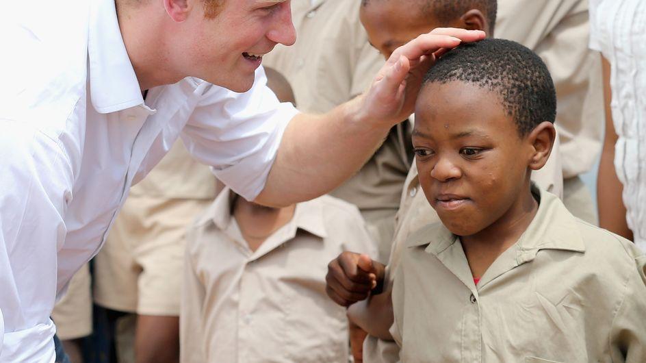 Le prince Harry : Bientôt chauve ?
