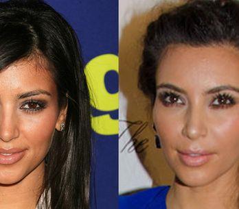 Kim Kardashian : Son avant/après chirurgie esthétique (Photos)