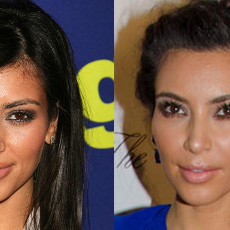 Kim Kardashian   Son avant   après chirurgie esthétique 63484178551