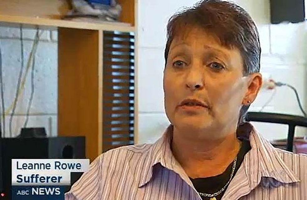 Une Australienne s'exprime avec un accent français suite à un grave accident