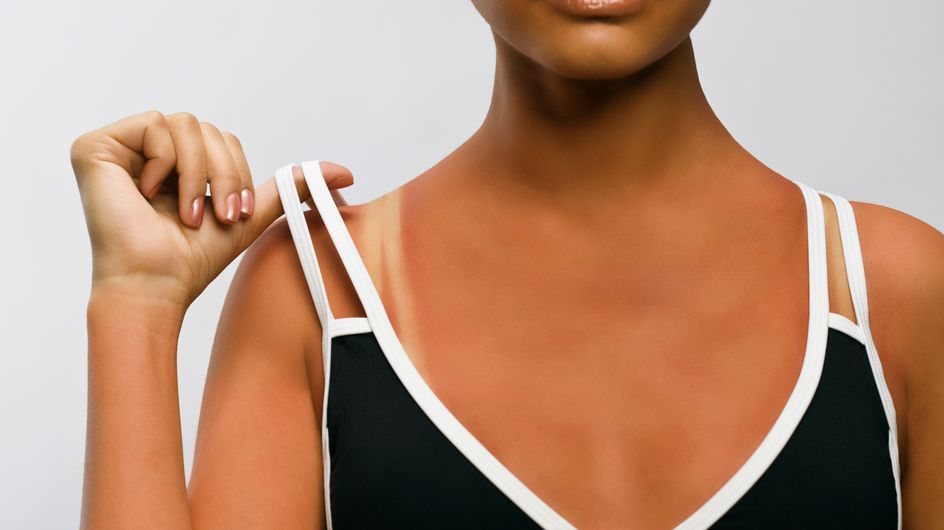 Crème solaire : Les indices de protection sont trompeurs !