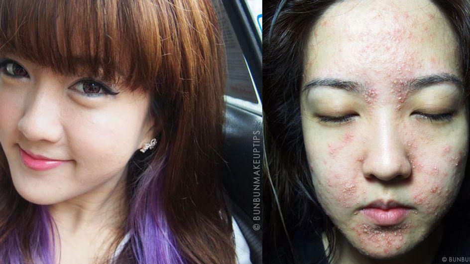 Bun Bun, bloggeuse défigurée après avoir testé une crème