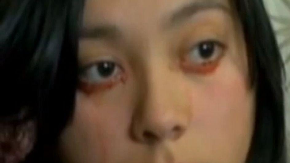 Une jeune femme pleure des larmes de sang (Vidéo)