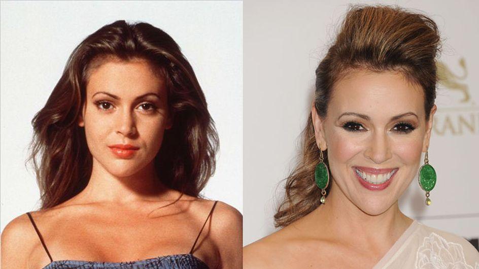 Alyssa Milano et la chirurgie esthétique : Son avant/après en photos