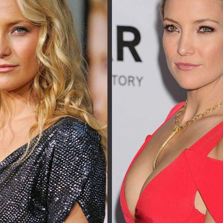 Les stars et leurs faux seins : Les photos avant/après