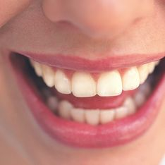 Blanchiment des dents : Un encadrement plus strict