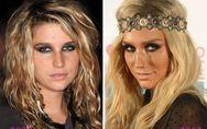 Ke$ha et la chirurgie esthétique : Son avant/après en photos