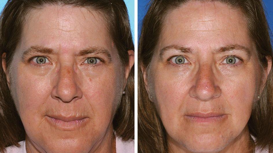 Tabac : La preuve choquante que fumer accélère le vieillissement de la peau (photos)