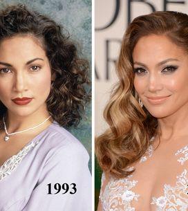 Jennifer Lopez : Chirurgie esthétique ou pas chirurgie esthétique ?