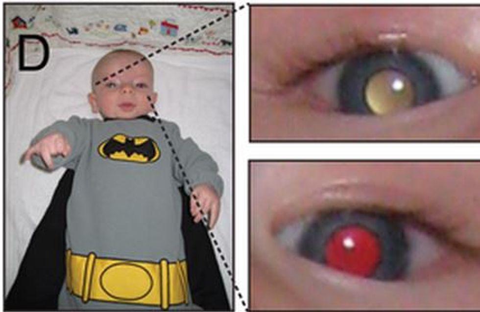 Cancer de la rétine chez l'enfant : De simples photos permettent de le dépister