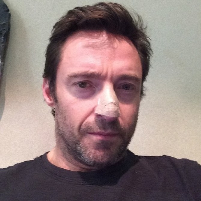 Hugh Jackman cancer de la peau