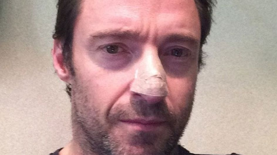 Hugh Jackman: Schock-Diagnose Hautkrebs!