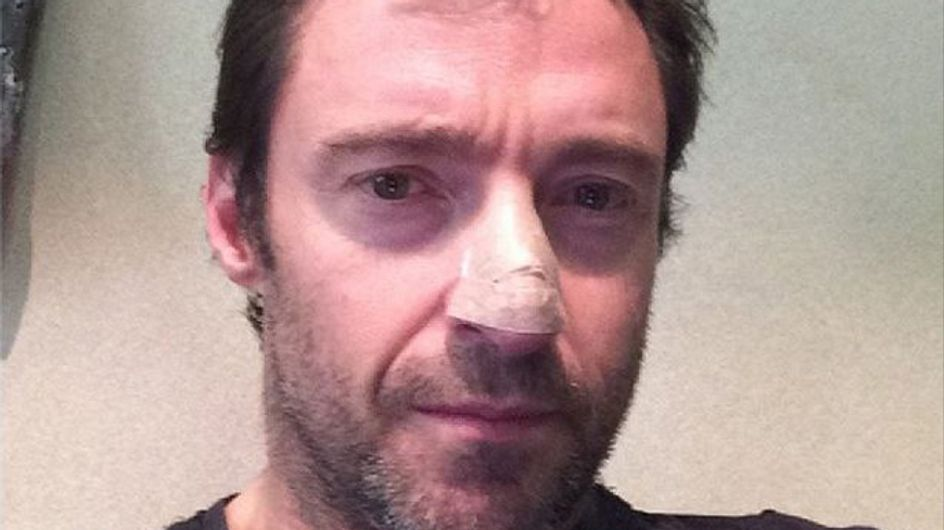 Hugh Jackman has been treated for skin cancer
