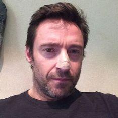 Hugh Jackman confiesa en Twitter que sufre cáncer de piel