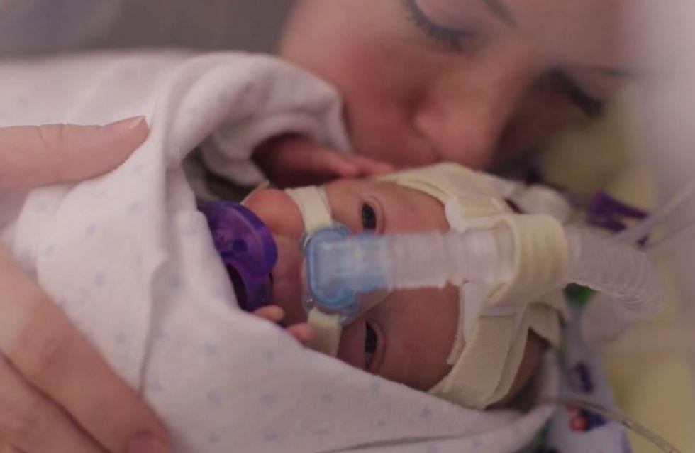 Un an de la vie d'un grand prématuré : La vidéo qui émeut le Web