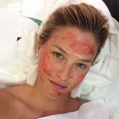 Bar Refaeli : Elle a tenté le lifting vampire (Photos)