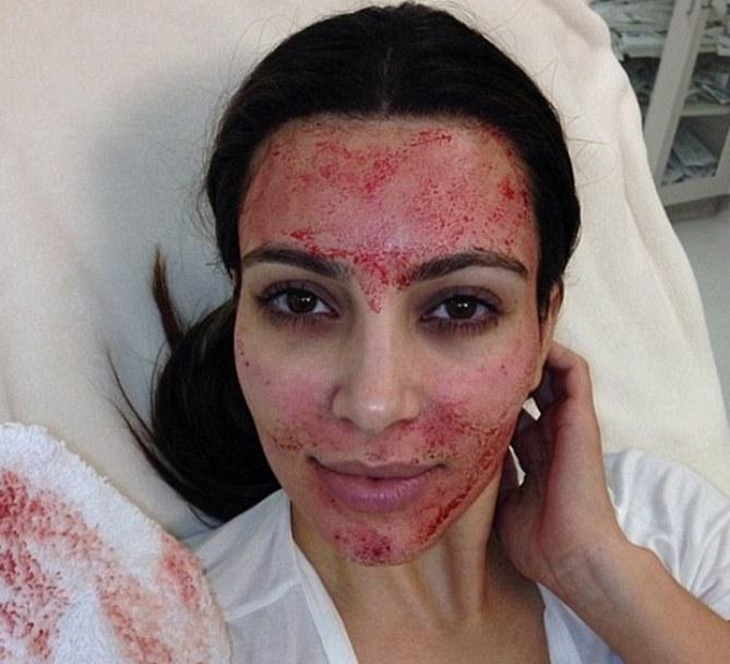 Kim Kardashian après son lifting vampire
