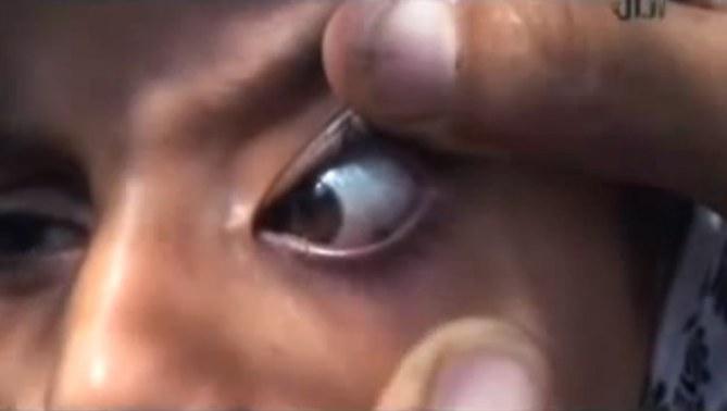 Insolite : une fille pleure des pierres