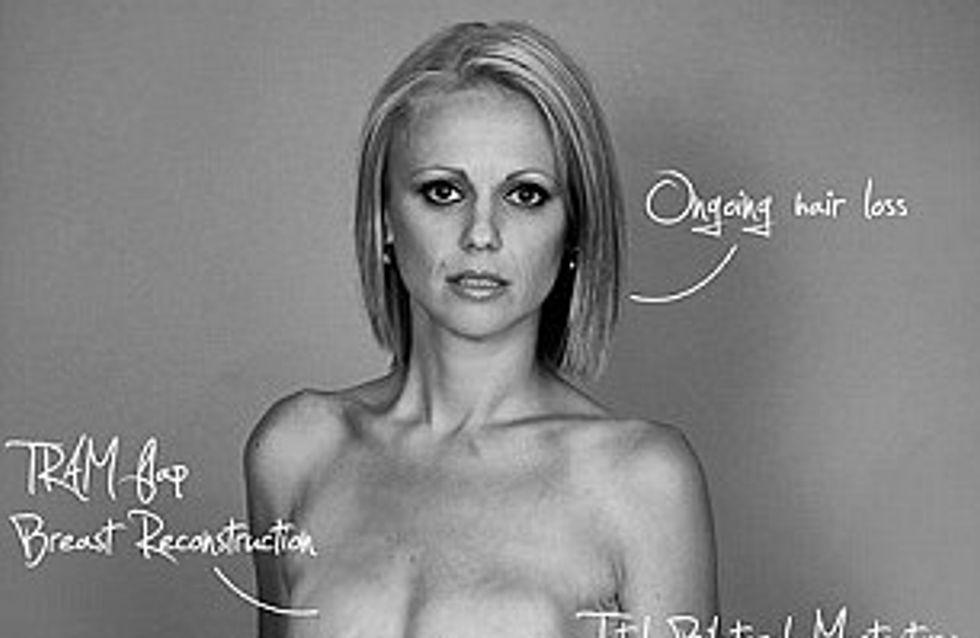 Beth, segnata dal cancro, si mostra nuda su Facebook e perde 100 amici