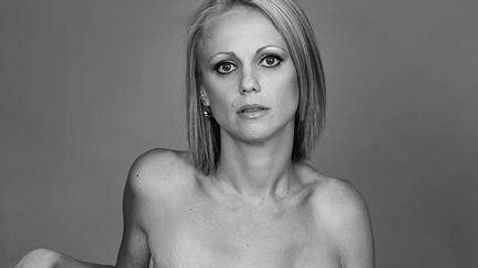 Cancer du sein : Elle pose et expose ses cicatrices sur Facebook (photos)