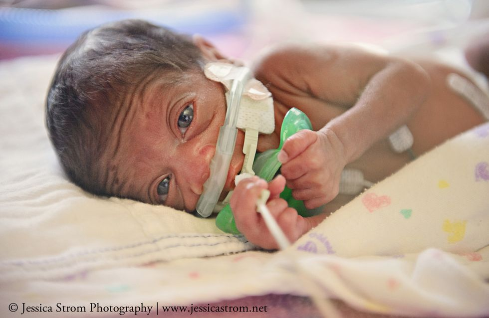 Schlag weiter, kleines Herz! Diese Bilder von Frühgeborenen lassen uns einfach nur staunen