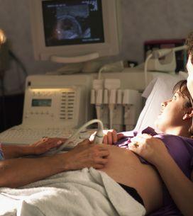 5 motivi per cui l'ostetrica è preferibile al ginecologo per la tua gravidanza