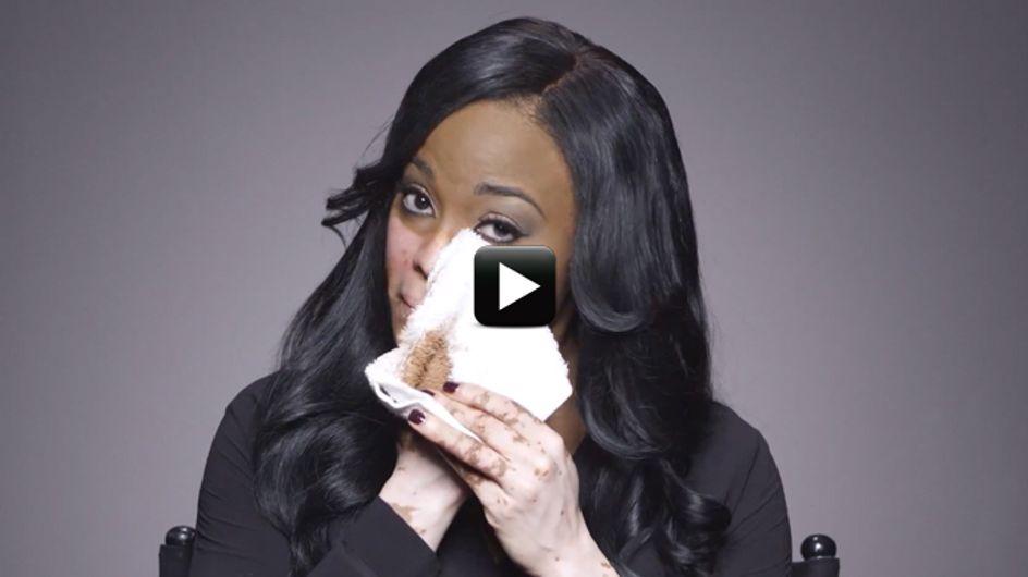 Video/ Quando il make-up aumenta la fiducia in se stesse: la storia di Cheri, che soffre di vitiligine