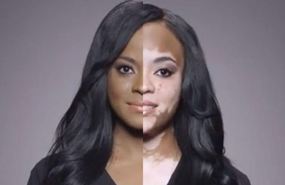 L'après/avant courageux et stupéfiant d'une femme contrainte de cacher sa maladie de peau sous du maquillage (vidéo)