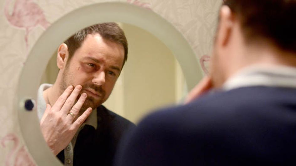 Eastenders 31/03 – Mick's family question him about his bruised face