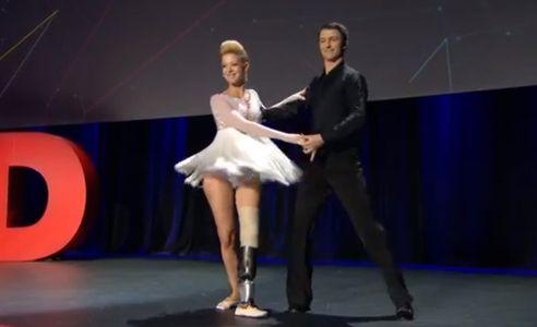 Cette danseuse professionnelle remonte sur scène après la perte de sa jambe