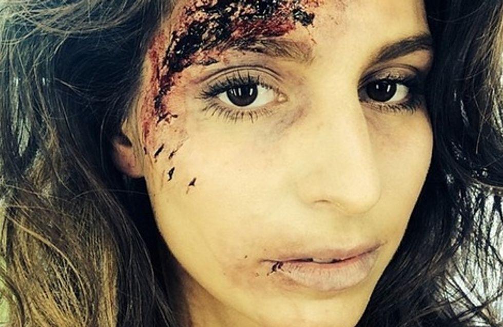 Laury Thilleman défigurée (photos)