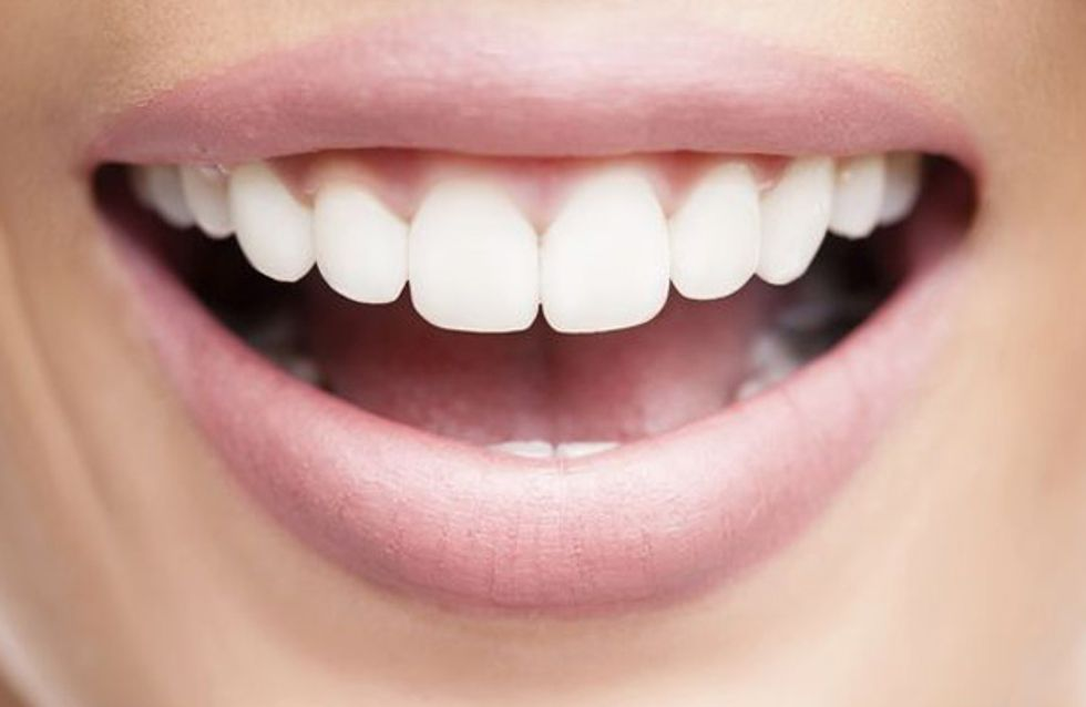 Sensu's Smile Makeover! The Ultimate Teeth Whitening Treatment