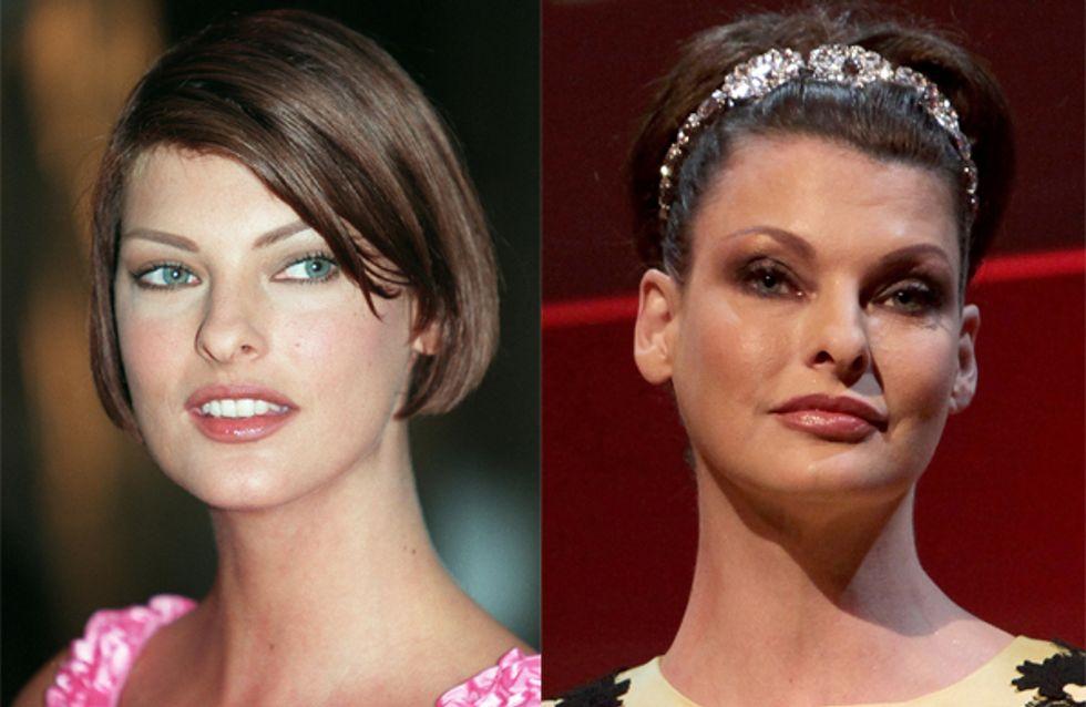 Linda Evangelista : Son avant/après chirurgie esthétique (photos)