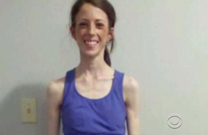 Anorexique, cette jeune femme est restée en vie grâce à l'aide d'inconnus