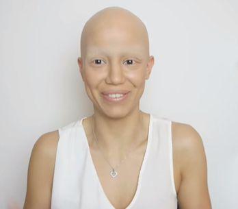 Cette jeune femme souffre de la pelade mais n'a pas abandonné sa féminité pour a