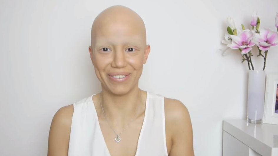 Cette jeune femme souffre de la pelade mais n'a pas abandonné sa féminité pour autant (Vidéo et photos)