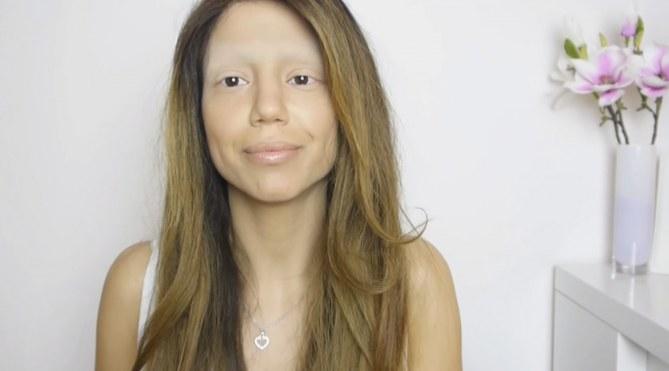 Aylin, la ragazza con l'alopecia che si mostra su yotuube
