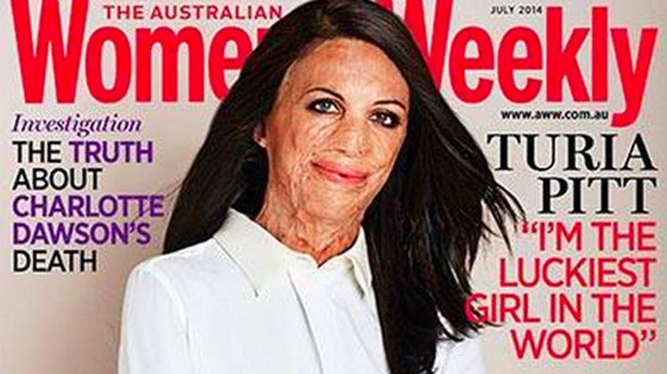 Turia Pitt, grande brûlée, en couverture d'un magazine féminin australien