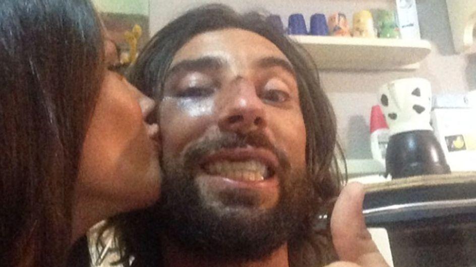 Brumotti: Giorgia è la mia medicina!. Dopo la caduta, il biker si fa consolare dalla Palmas