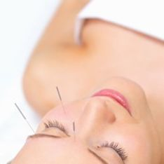 Acupuncture and fertility | Acupuncture in pregnancy