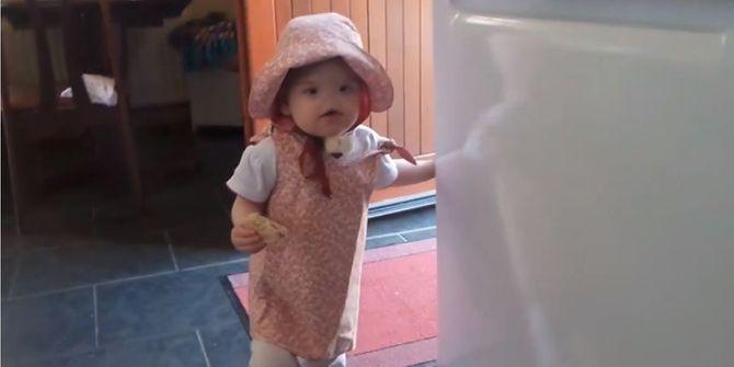 Tessa Evans, la petite fille sans nez