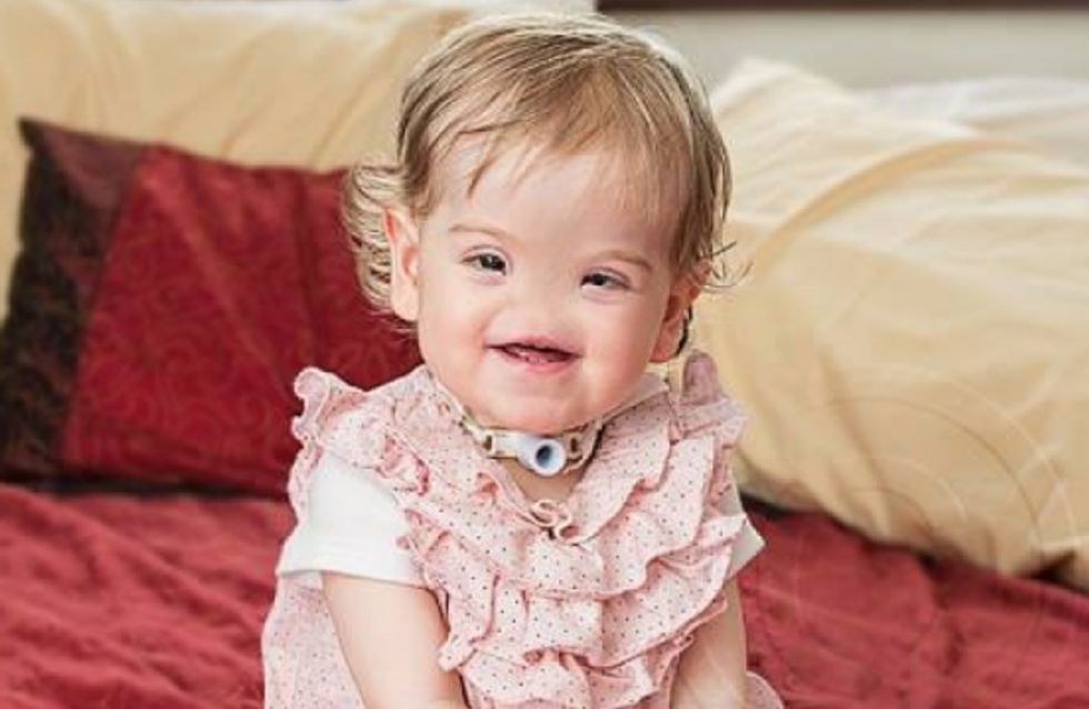 Irlande : Tessa Evans, 17 mois, vit sans nez