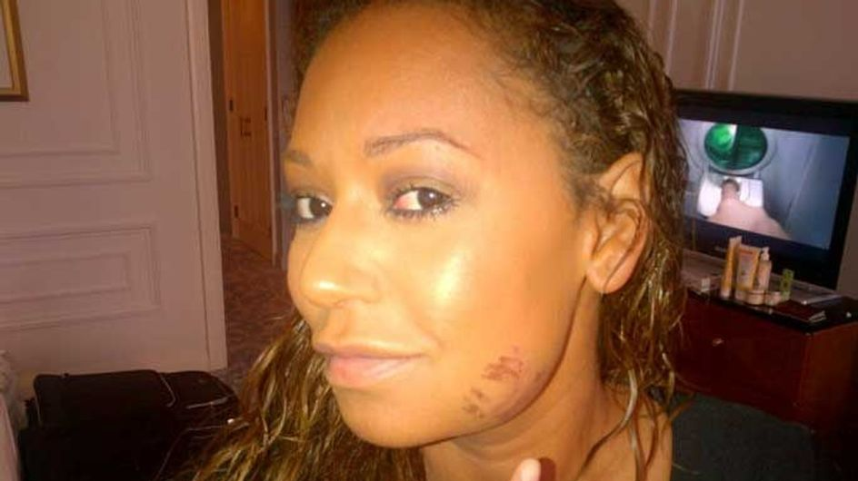 Mel B injured after running in seven-inch Louboutins