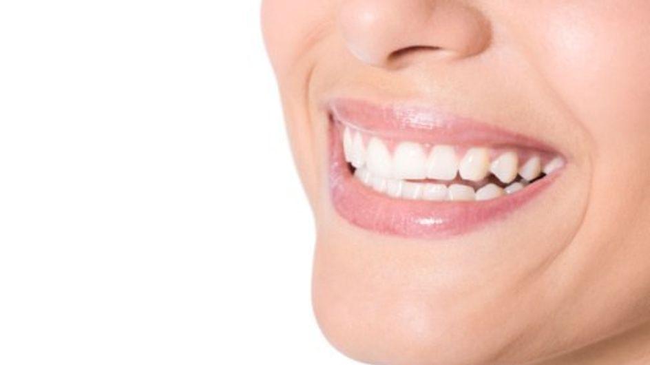 Tips voor stralend witte tanden