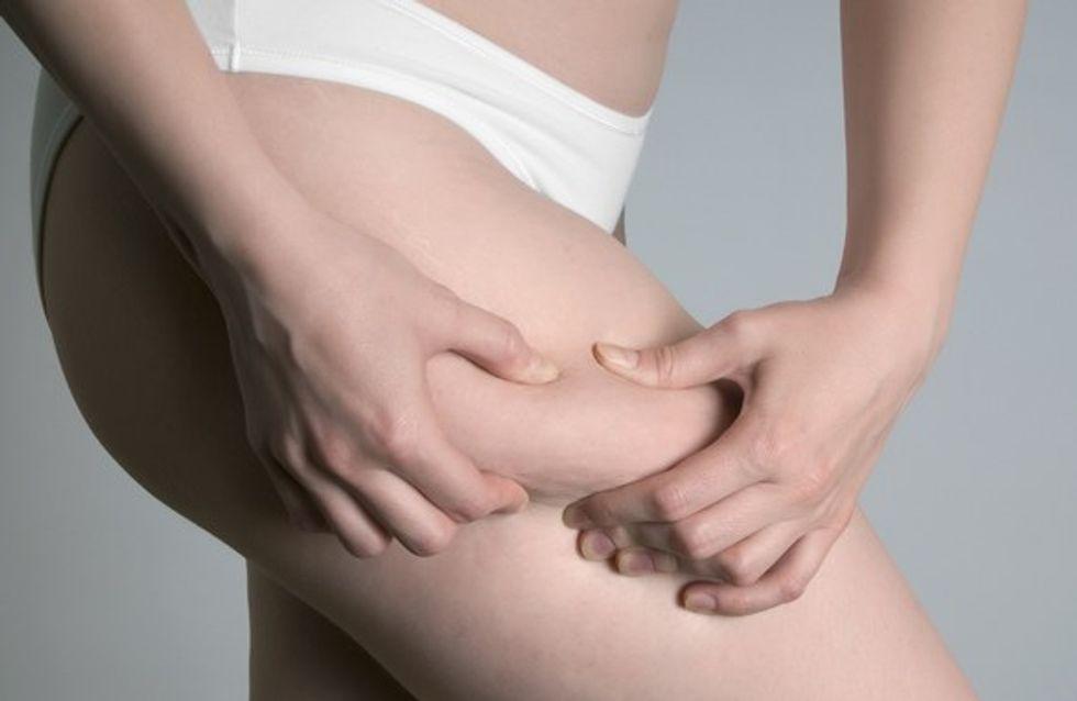Eliminare la cellulite: tutti i trattamenti disponibili