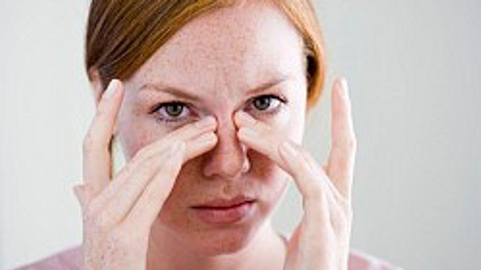 Le occhiaie: cause e rimedi