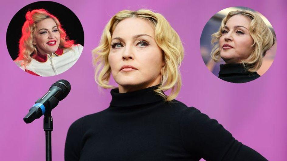 Botox-Opfer? Madonna, was ist mit deinem Gesicht los?