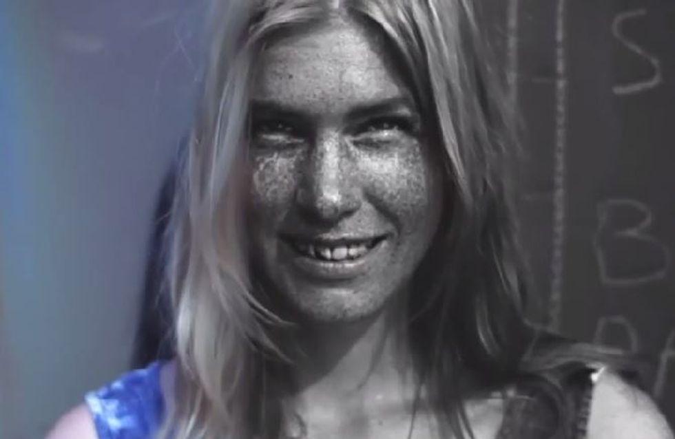Voici les ravages que peut faire le soleil sur votre peau... (Vidéo)